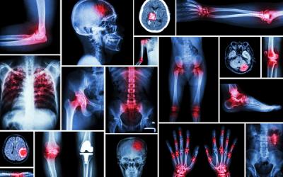 Où trouver : Cannabis therapeutique en belgique ou cannabis thérapeutique epilepsie Comparaison